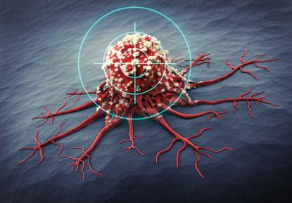 Combattre les cellules cancéreuses à l'aide de la chimiothérapie - #MoiPatient #Cancer
